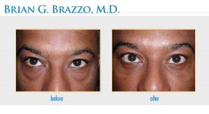 Eyelid Rejuvenation performed by New York City Eyelid Surgeon Dr. Brian Brazzo