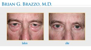 Blepharoplasty performed by New York City Eyelid Surgeon Dr. Brian Brazzo