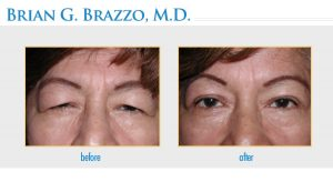 Ptosis in New York City by Dr. Brian Brazzo MD