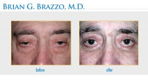Ptosis Treatment in New York City by New York City Oculoplastic Surgeon Dr. Brian Brazzo MD