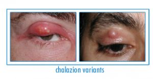 Chalazion Treatment Manhattan, NY
